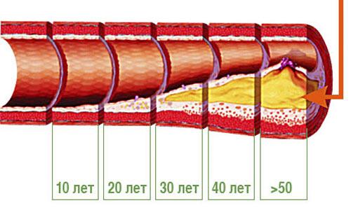 График накопления холестерина в процессе жизни человека.
